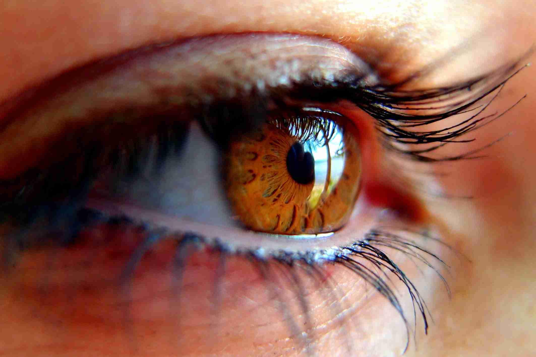 ¿Cómo afecta el Glaucoma a las mujeres? 1