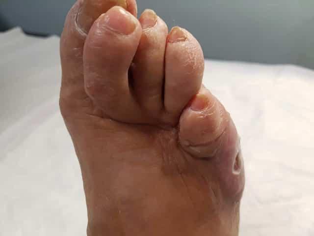La importancia de la prevención real del pie diabético, Día Mundial de la Diabetes 1